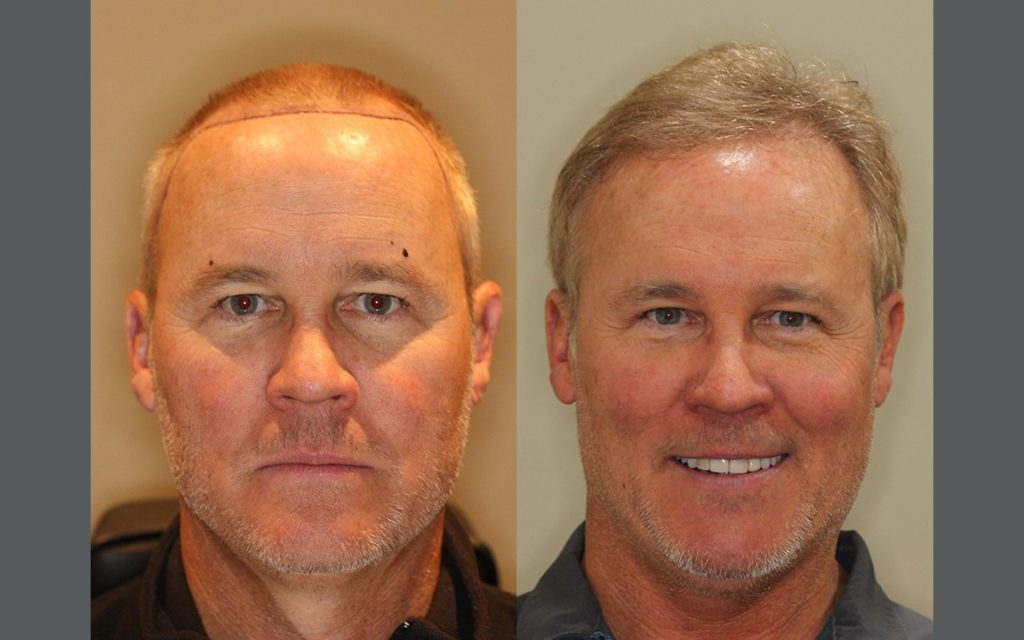 NeoGraft Patient Testimonial – 1 Year Follow Up - Click to view