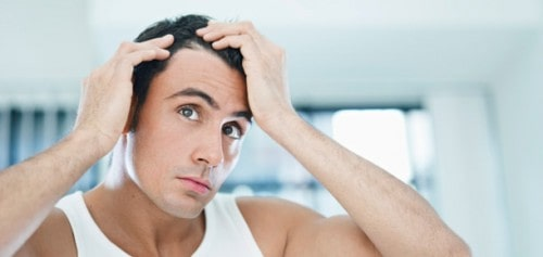 Stock image of a male model checking his hair loss with both hands