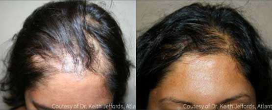 Before and after image of a female patient undergone hair loss treatment