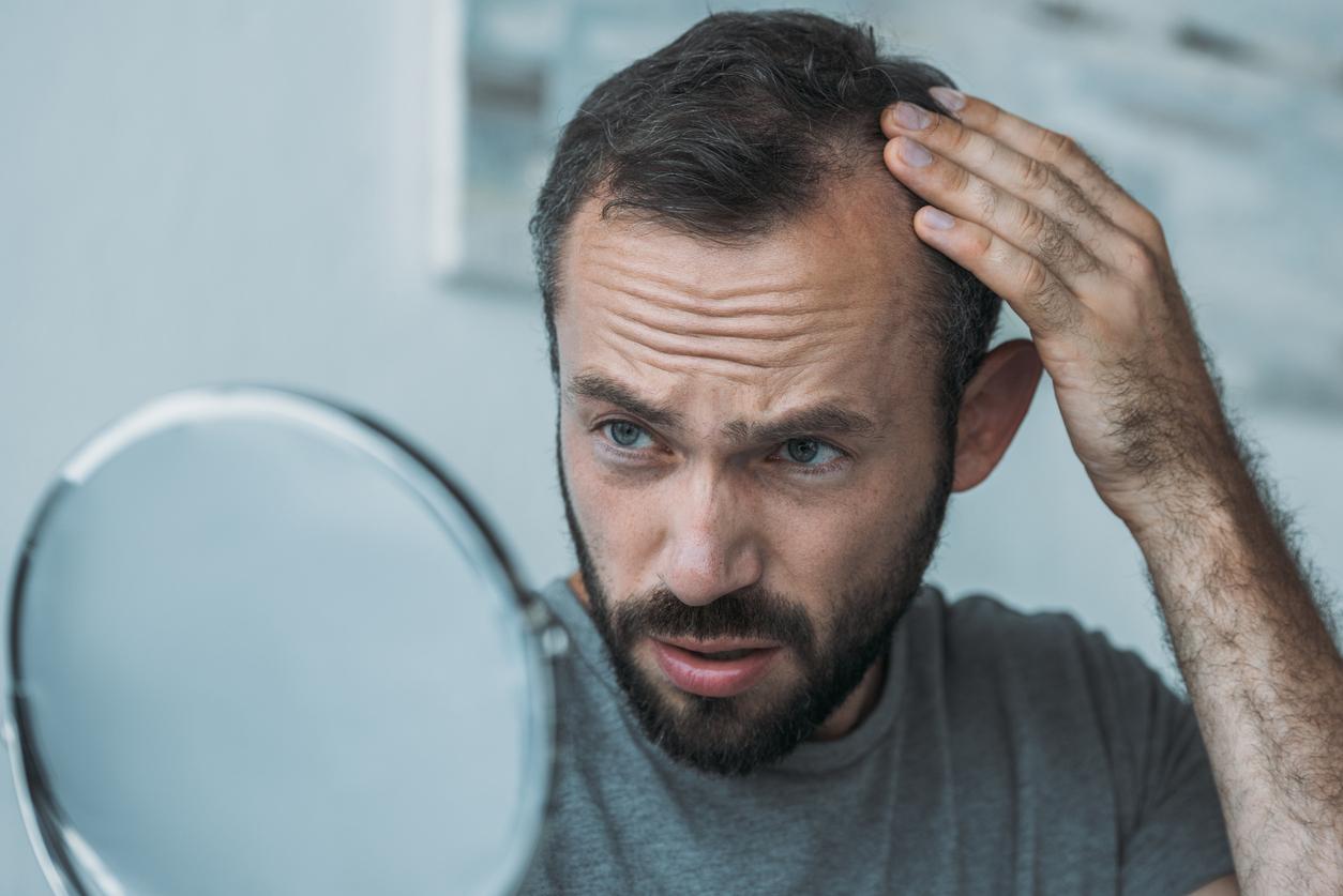 Can medications cause hair loss?