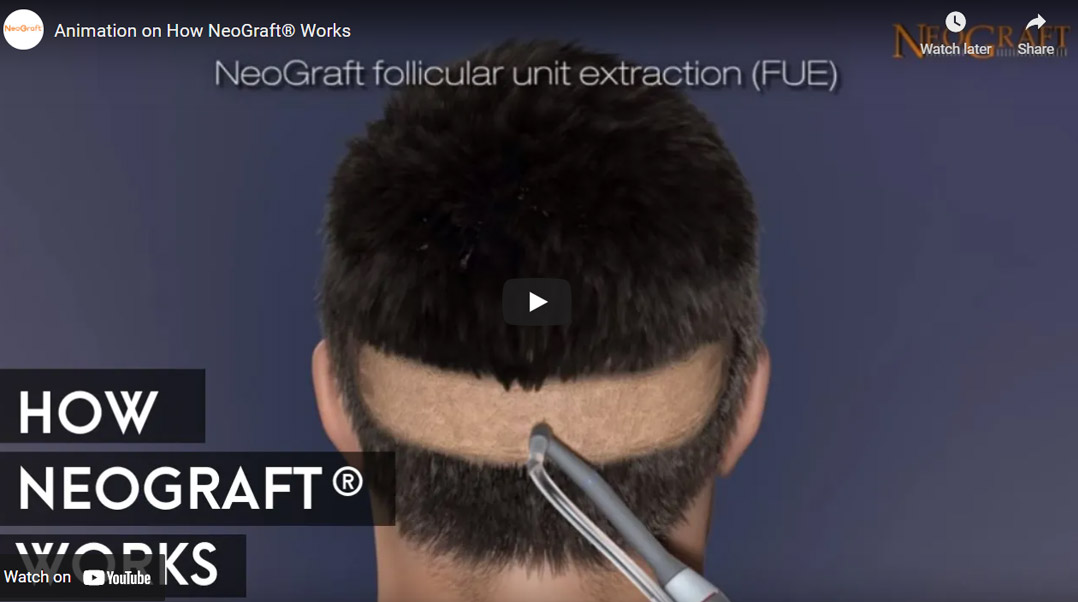 Image of Animation on How NeoGraft® Works Click to See Video