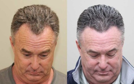 55 year old male before and after patient image