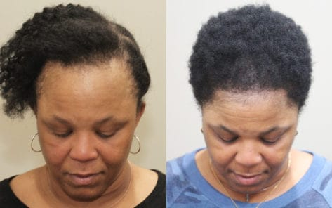 49 year old female before and after patient image