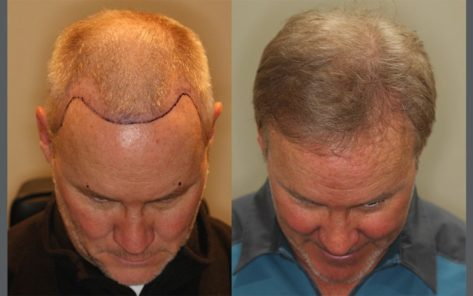 54 year old male before and after patient image
