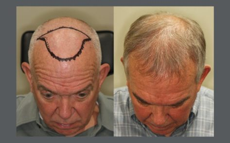60 year old male before and after patient image