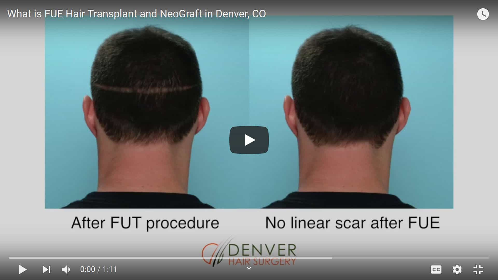 What is FUE Hair Transplant and Neograft in Denver, CO - Click to see video
