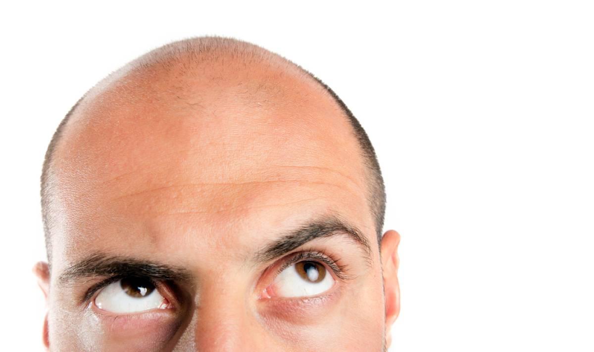 Man wondering if smoking can cause hair loss.