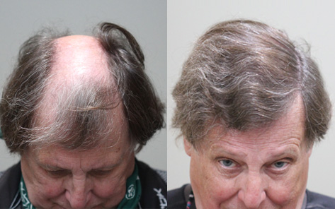 70 year old male before and after patient image